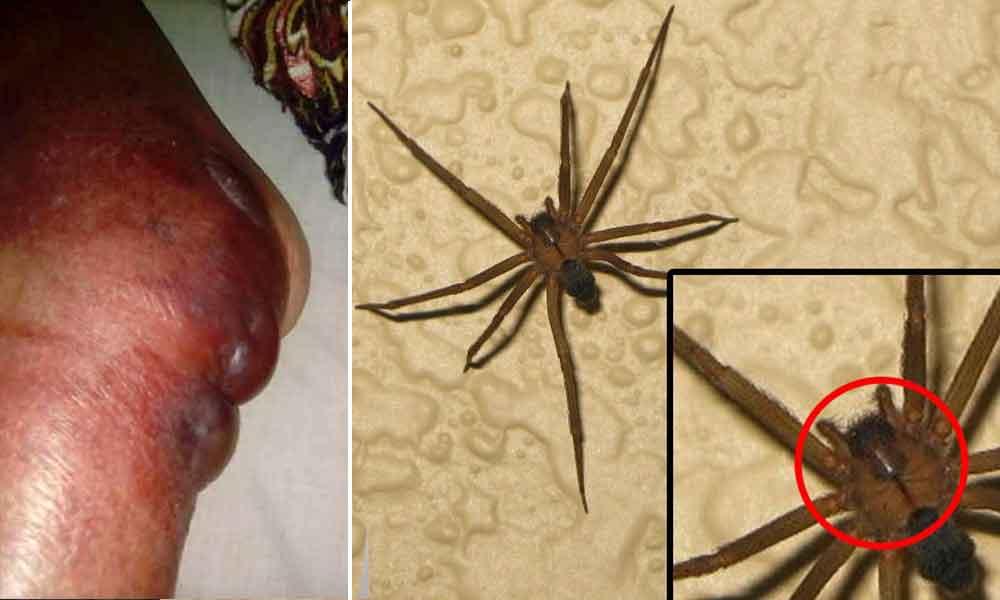 Alerta en Tijuana por picadura de araña violinista