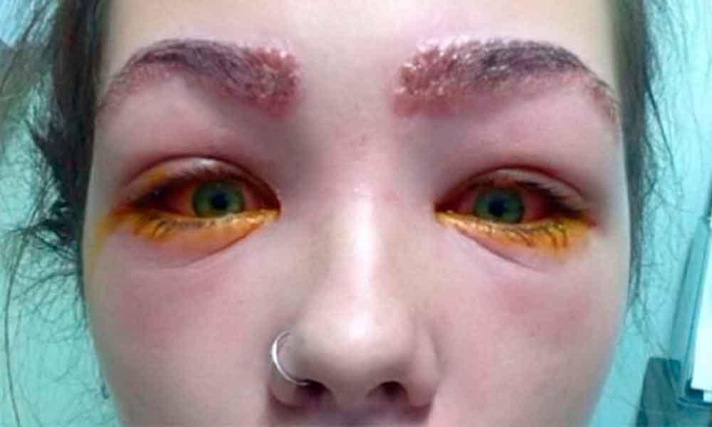 Casi pierde la vista por teñirse las cejas