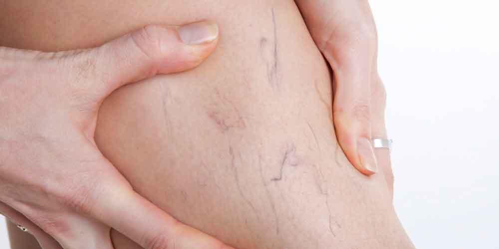 Várices, padecimiento común entre las mujeres: IMSS