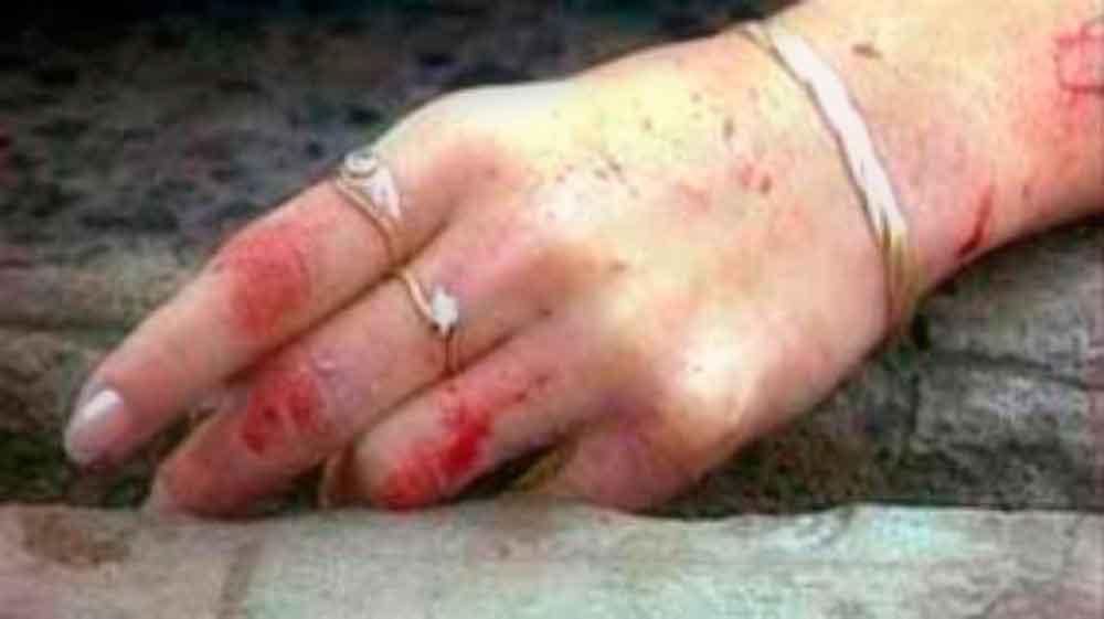 Sin piedad asesinan a mujer con 8 meses de embarazo