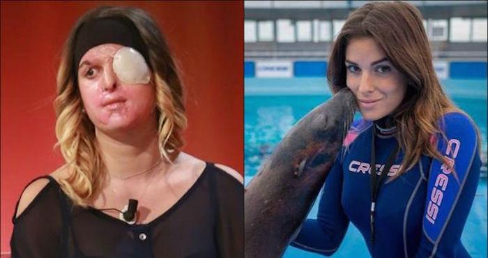 La Miss Italia que fue desfigurada con ácido a manos de su ex novio muestra por primera vez su rostro