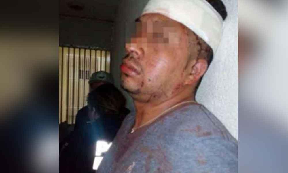 Dan brutal golpiza a hombre que abusaba de sus hijastras