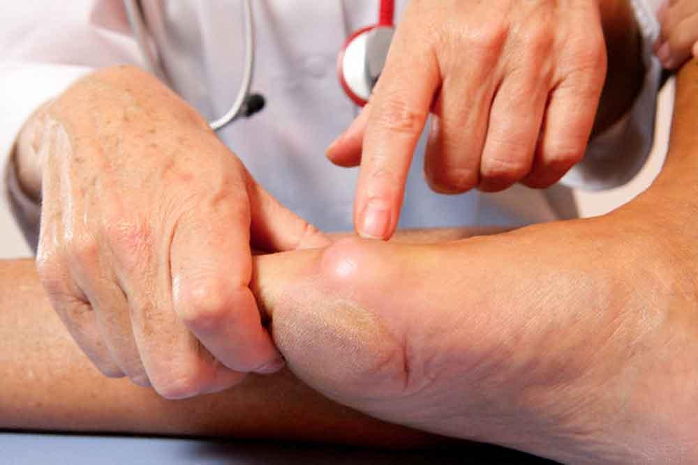 Ácido úrico, factor de riesgo para el corazón: IMSS