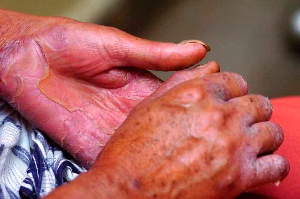 Alerta en Chile tras confirmar primer caso de lepra