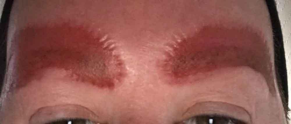 Mujer se queda sin cejas después de habérselas tatuado