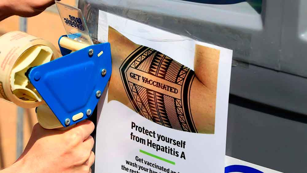 San Diego sigue luchando contra un enorme brote de hepatitis A