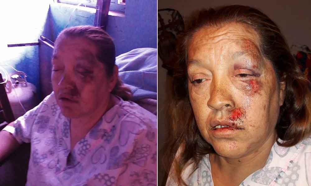 Policías atropellan a anciana en Mexicali; piden se haga justicia
