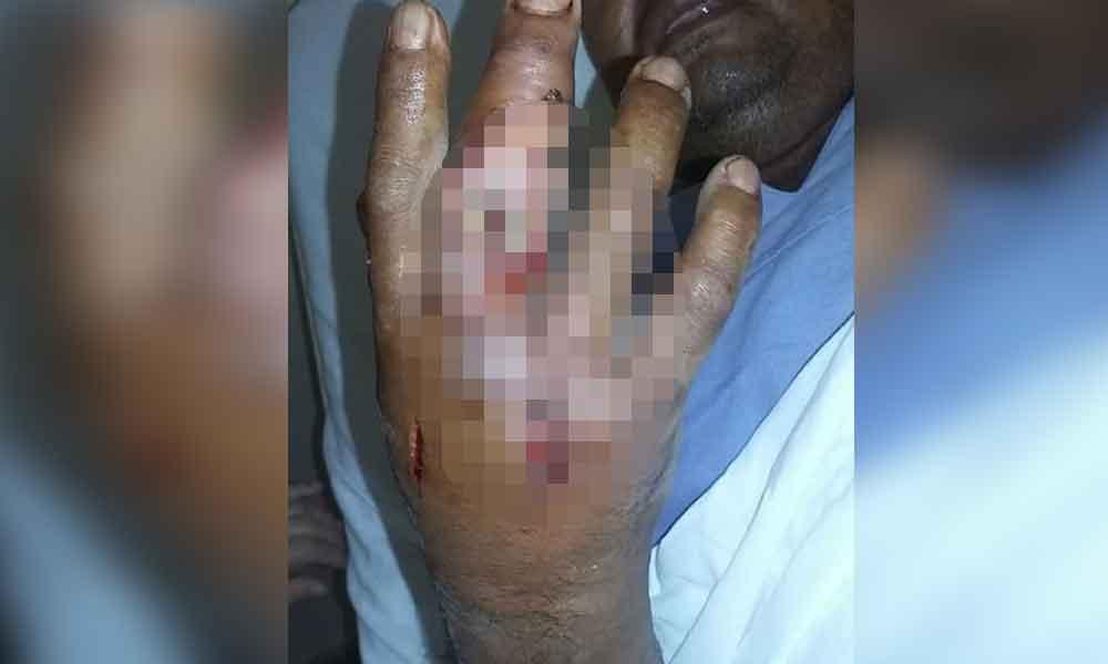 Hombre de Tijuana sufre mordedura de araña violinista