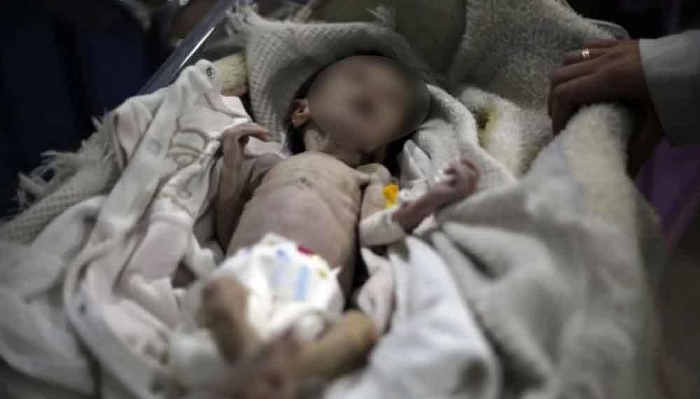 Sahar, la niña que murió de hambre