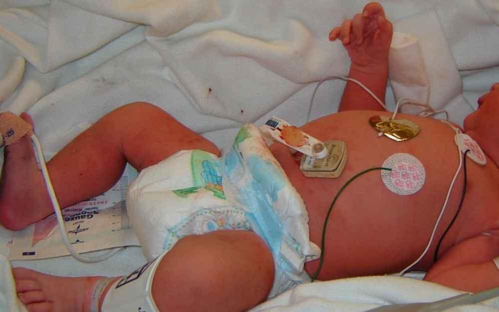 Trasladan a hospital, bebé de dos meses abusada por su propio padre