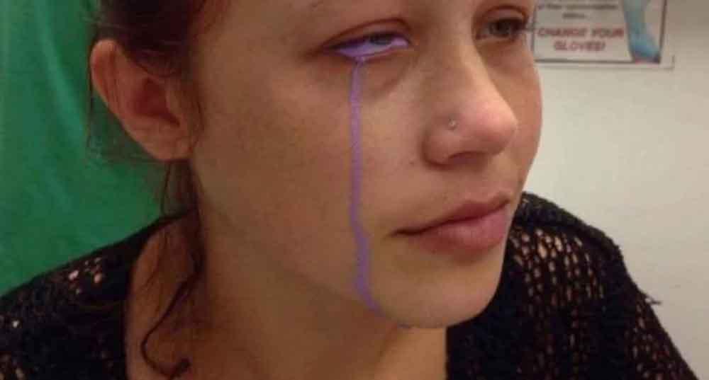 Tatuaje ocular deja parcialmente ciega a modelo