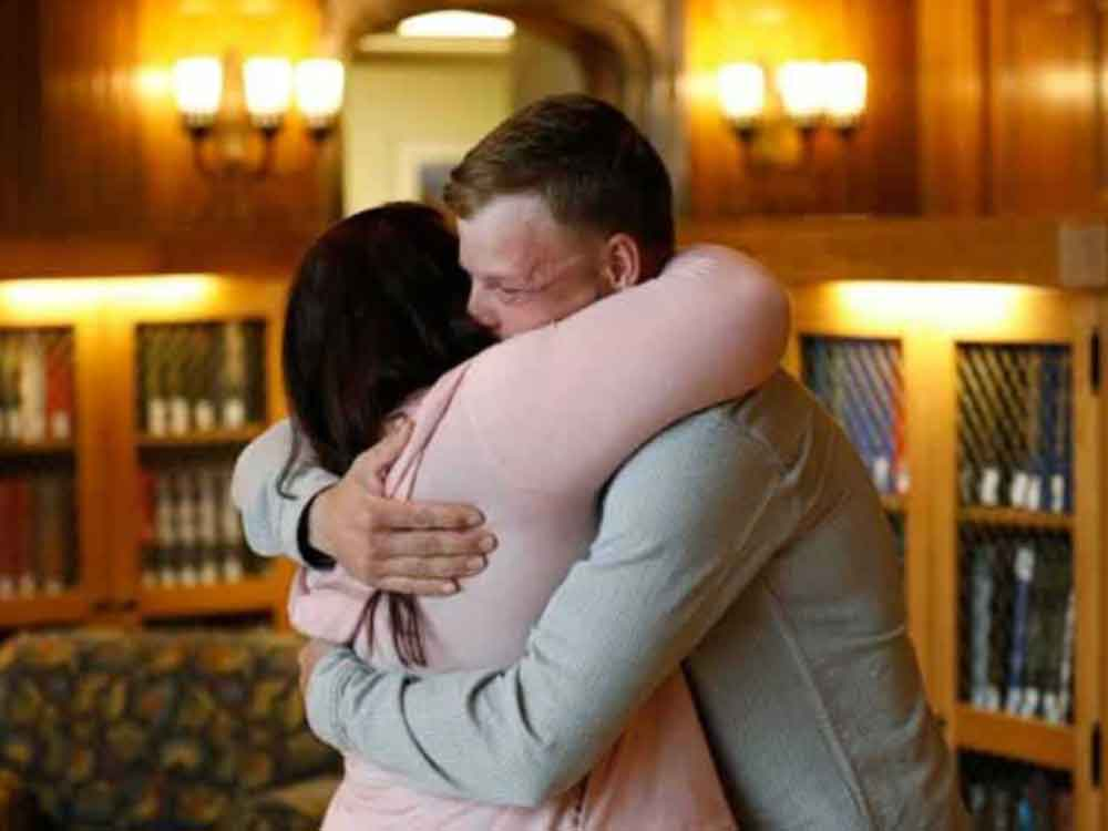 Mujer encuentra al hombre que recibió el rostro de su esposo en trasplante
