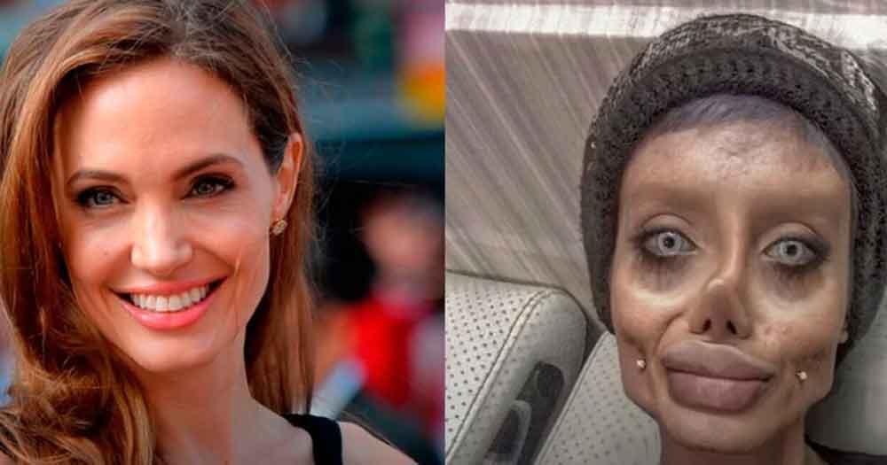"""Quería parecerse a Angelina Jolie ahora la llaman """"Zombie"""""""