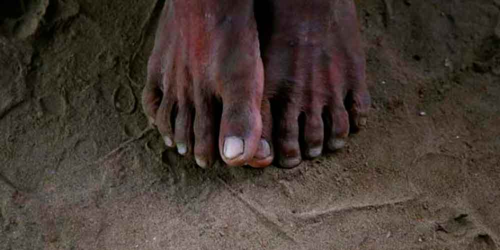 Arrestan a hombre en la India ¡por el olor de sus pies!