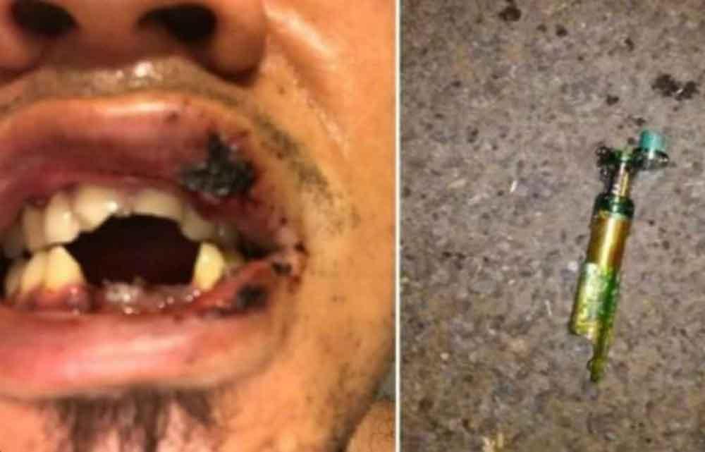 Le explota cigarrillo electrónico y pierde dientes