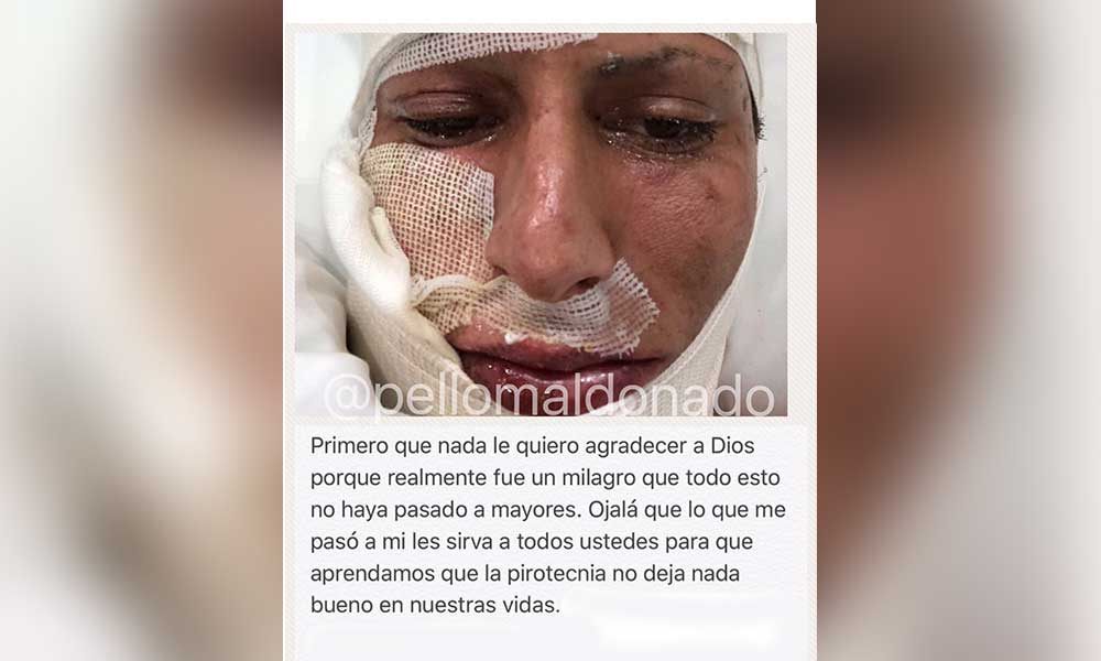 Fuegos pirotécnicos le explotan en la cara a jugador de Tigres; Tardará semanas en recuperarse