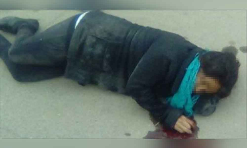 Pitbull se escapa y ataca brutalmente a señora de 50 años en Mexicali