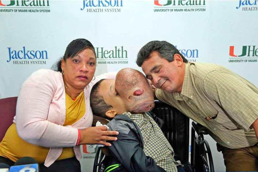 Muere niño tras retirarle tumor facial de casi 5 kilos