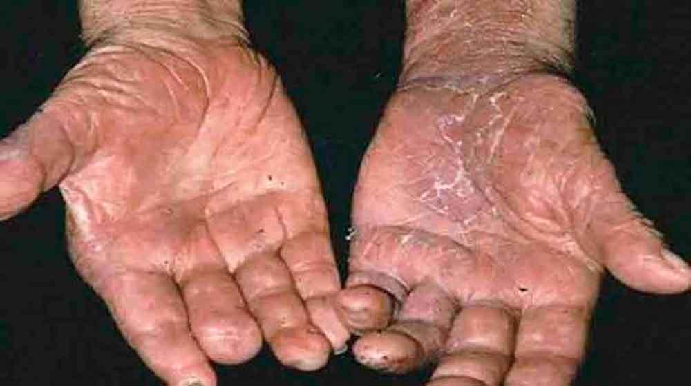 ¿Qué es la lepra?