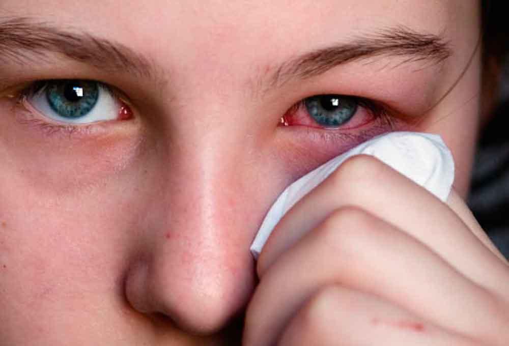 Exhorta Gobierno de BC a tomar medidas preventivas para evitar conjuntivitis