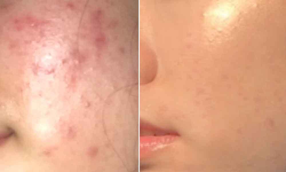 Combate el acné en 3 días con esta receta increíble