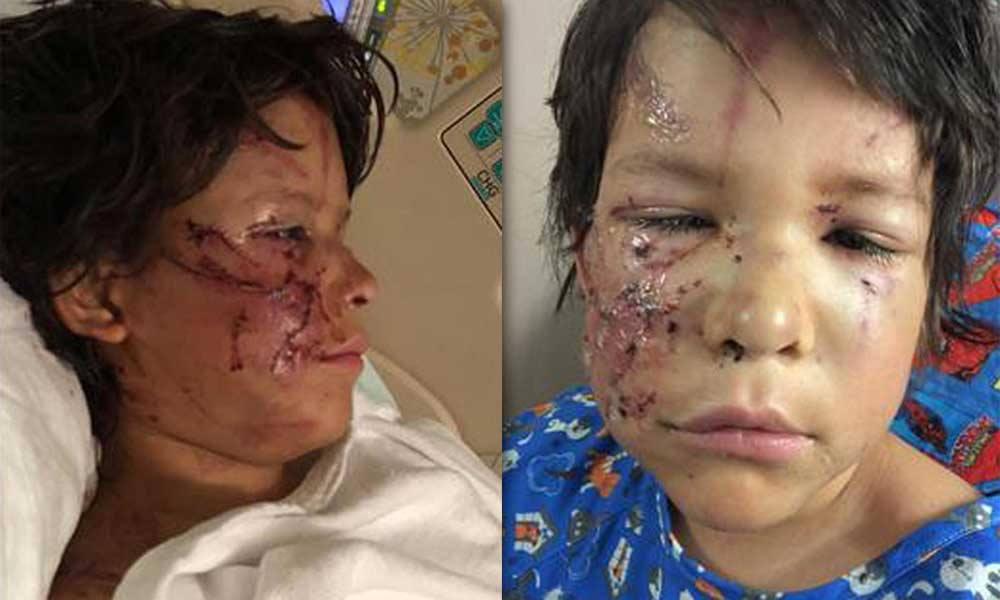 Mascotas desfigura el rostro de un pequeño de 10 años
