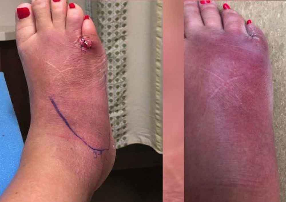 Hospitalizan a mujer con infección en los pies días después de hacerse pedicura