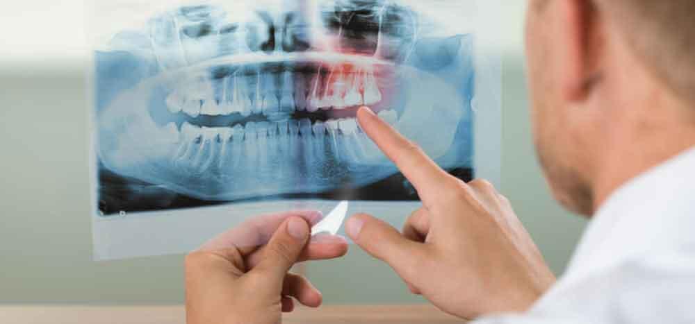 """Sexo oral está causando """"epidemia"""" de cáncer de garganta en hombres"""