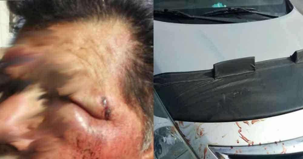 Taxista casi pierde un ojo tras ser agredido por un chofer de Altisa