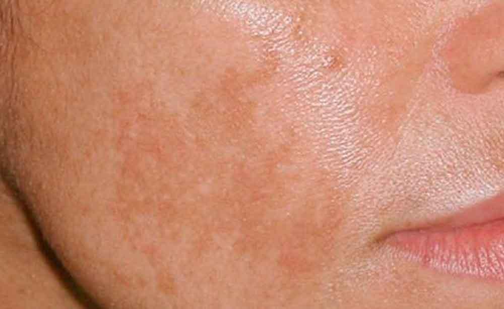¿Cómo quitar las manchas en la cara? Te damos 3 remedios caseros para limpiar tu piel