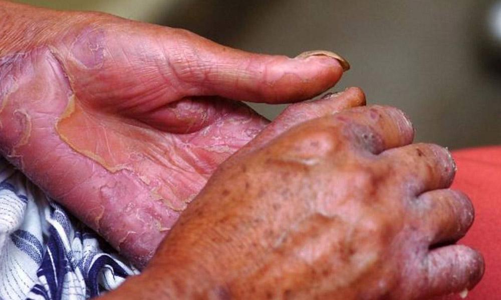 Aumentan casos de lepra en Guanajuato