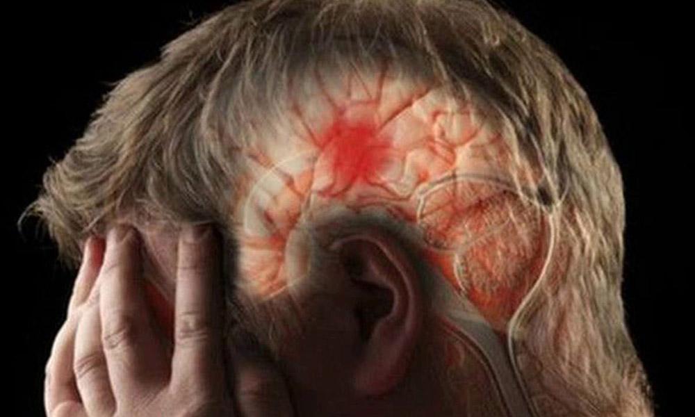 Conoce las señales de alerta ante un derrame cerebral