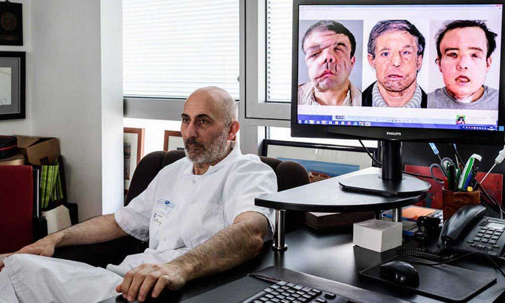 ¡Insólito! Hombre con tres caras tras realizarse transplante