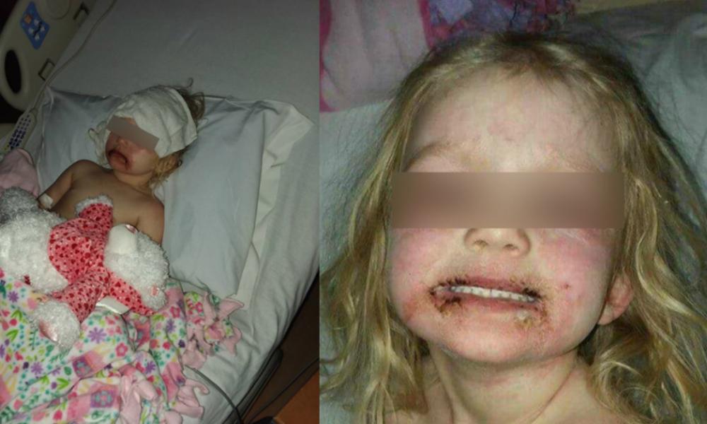 Niña usa maquillaje infantil y termina en el hospital; madre advierte en redes