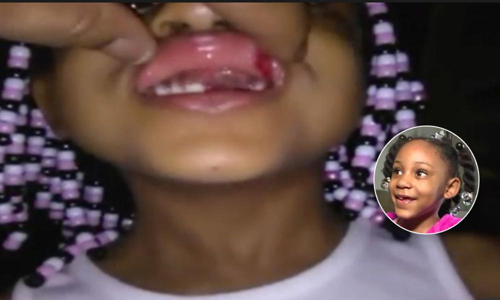 ¡Indignante! Regresa de guardería sin tres dientes, madre se molesta