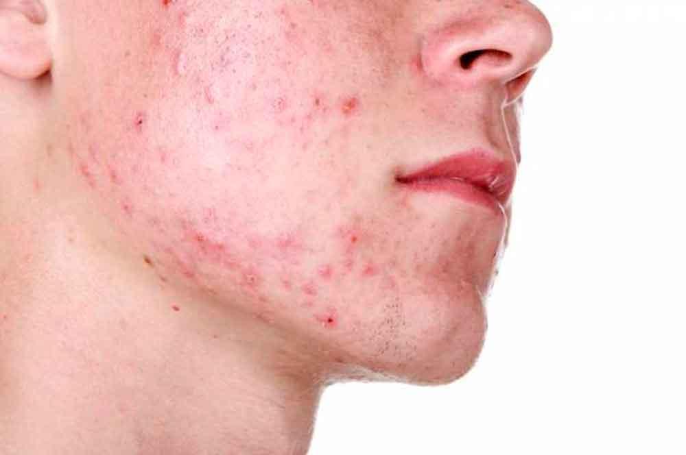 ¿Cómo puedo prevenir el acné?