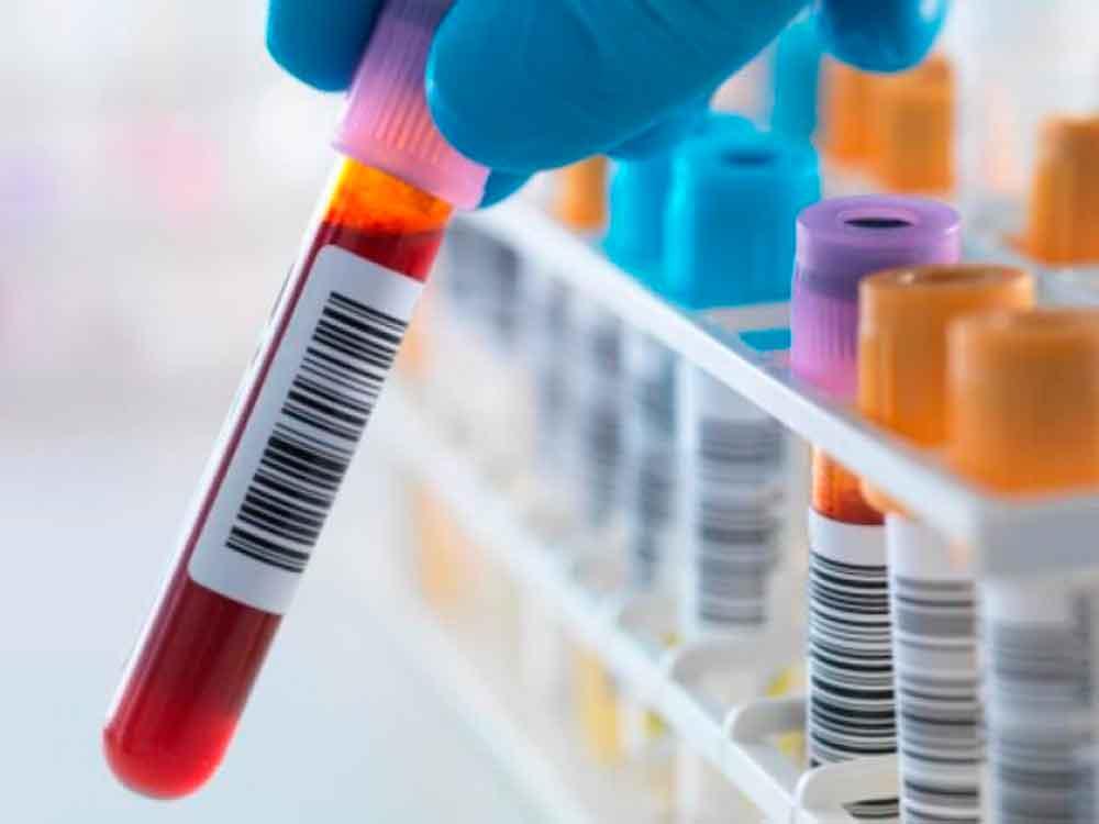 Desarrollan un examen de sangre que revela ocho tipos de cáncer