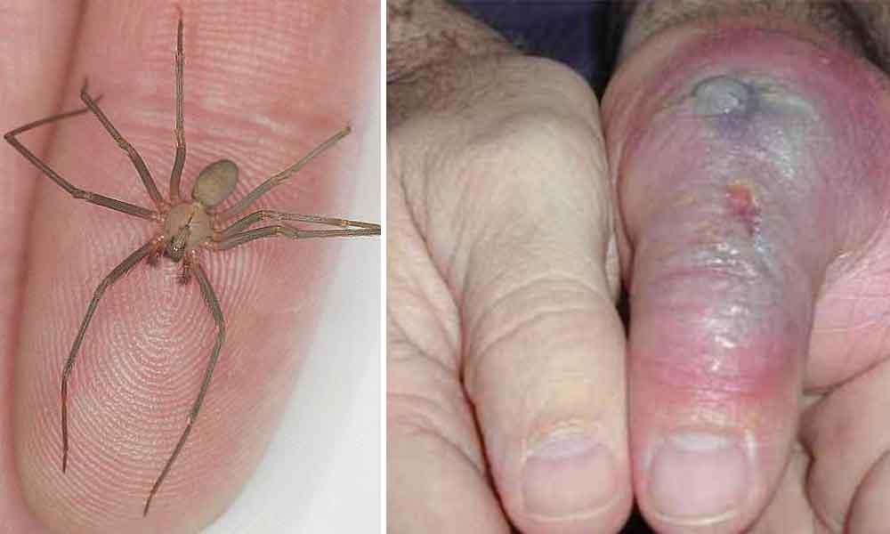Crean antídoto contra picadura de la araña violinista