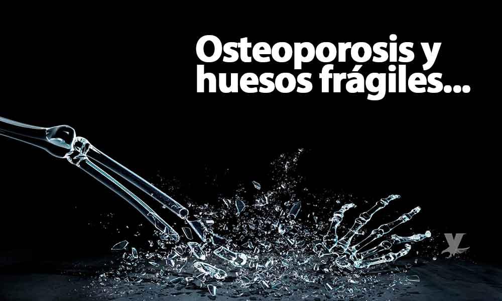 Huesos frágiles; la enfermedad que está afectando a los mexicanos debido al sobrepeso