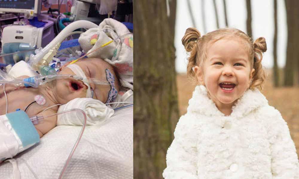 Niña de 3 años tiene la válvula cardíaca mecánica más pequeña del mundo