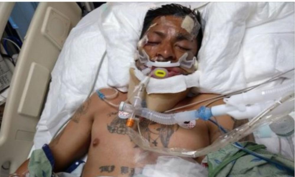 ¡Urge ayuda! Para identificar hombre atropellado en Tijuana