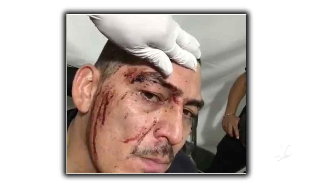 (VIDEO) Jose Manuel Figueroa sufre brutal caída de su caballo durante una presentación