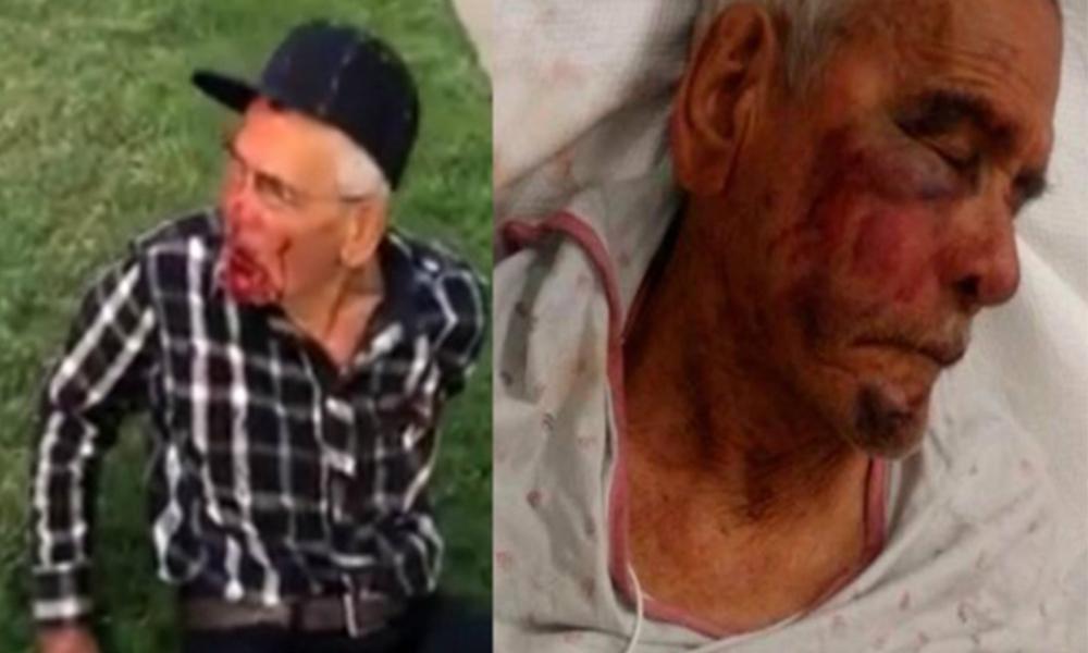 Golpean a persona de la tercera edad con un ladrillo en Estados Unidos (VIDEO)