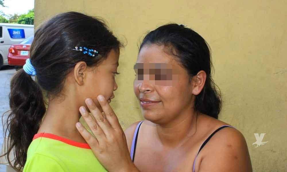 Niña víctima de bullying en la escuela, relata que hace 2 años un niño le echó spray en el rostro y perdió la vista en uno de sus ojos