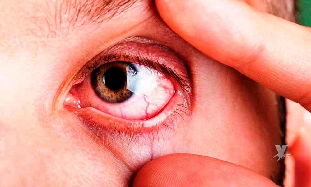 Síndrome del ojo seco ¿Qué es y quiénes son más propensos a padecerlo?