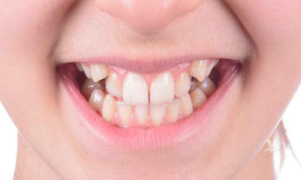 ¿Cómo prevenir los dientes chuecos?