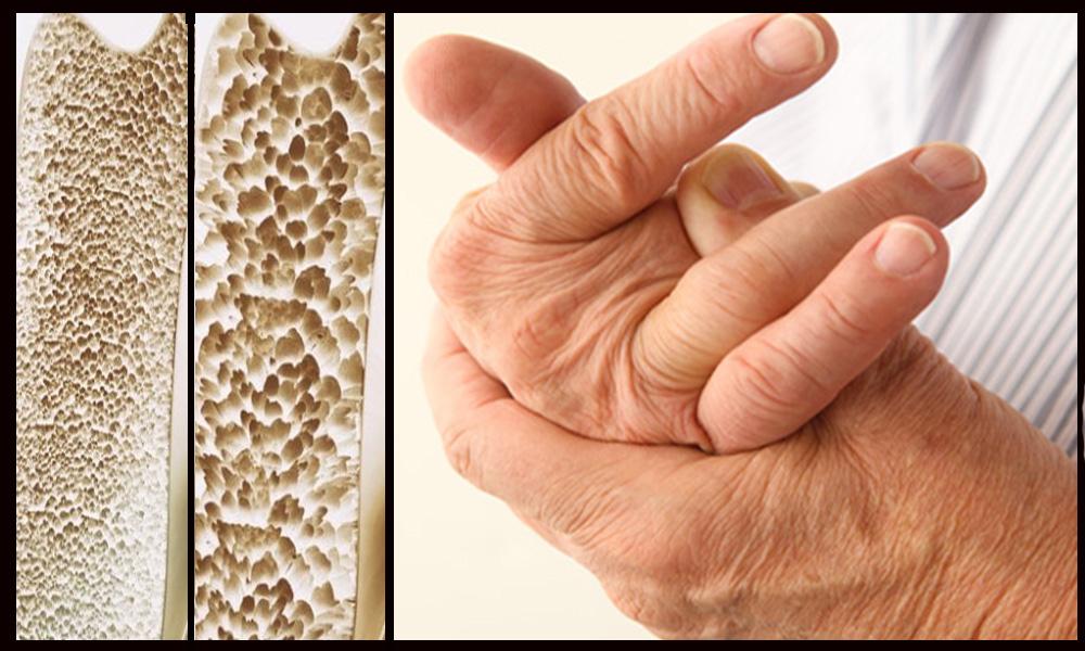 Recomienda IMSS tomar medidas para prevenir la osteoporosis