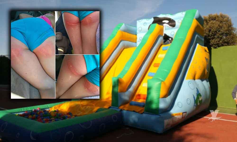 Altas temperaturas ocasionan quemaduras de segundo grado en una menor por jugar en inflable acuático