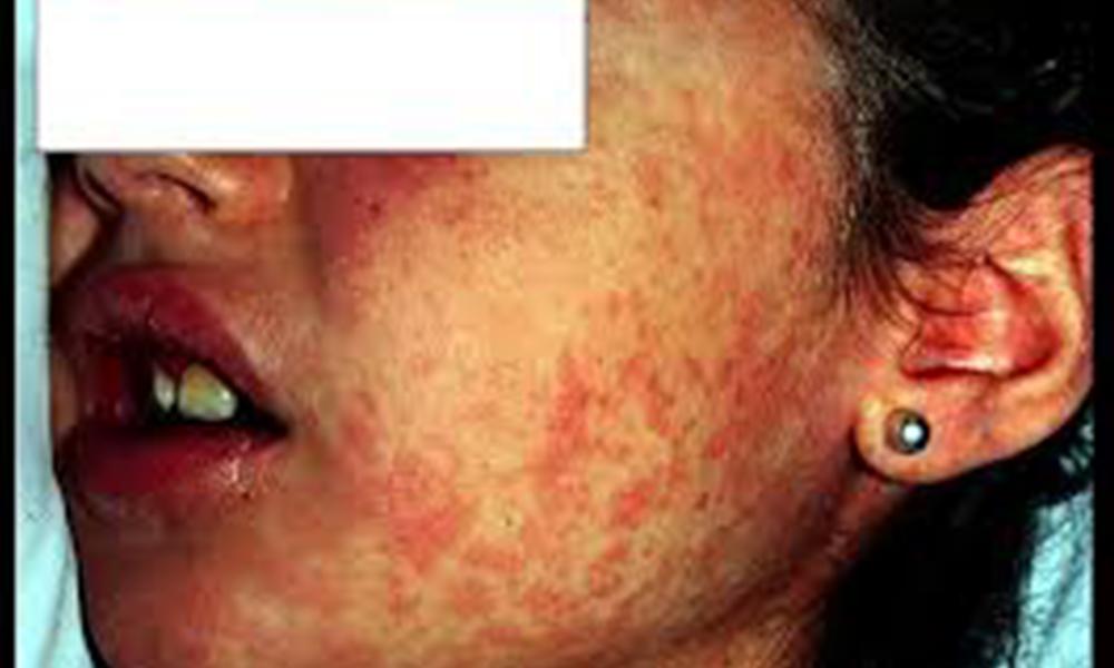 California, entre 21 estados, que el CDC está monitoreando por casos de sarampión