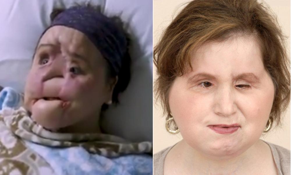 Sobrevive joven al suicidio y es sometida a impresionante trasplante de rostro